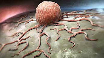 Wczesne spożywanie kolacji wspomaga odchudzanie i obniża ryzyko zachorowania na raka