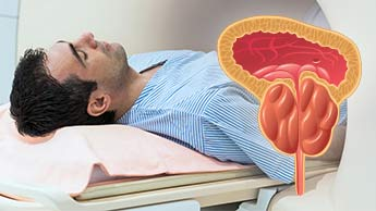 Optymalne funkcjonowanie prostaty