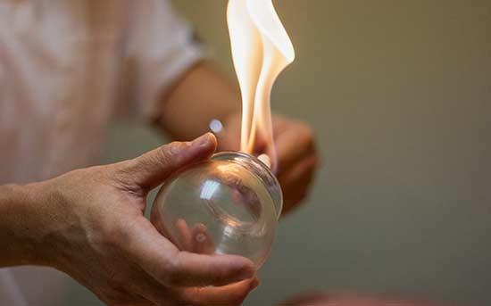 불을 사용한 부항 치료