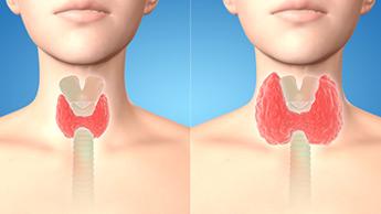 Protocolos de tratamento eficientes para hipertireoidismo e hipotireoidismo