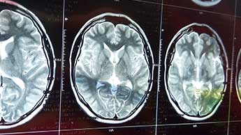 脳卒中の回復