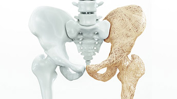 骨粗しょう症の予防方法