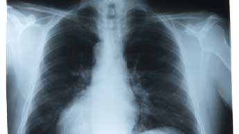 Des poumons