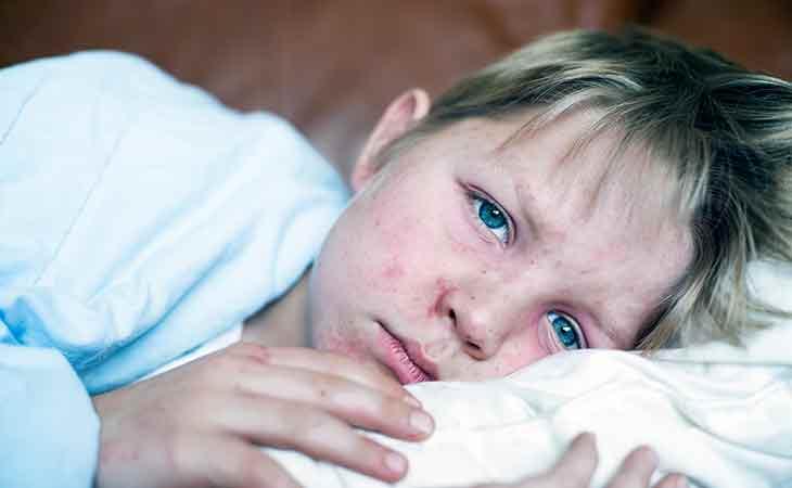你了解麻疹病毒吗?家庭预防麻疹须知|Mercola医生自然健康资讯文章