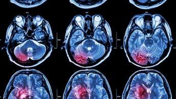 Знаете ли вы наиболее распостраненные признаки опухоли головного мозга?