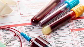 높은 비타민 D 수치는 암 발병 위험성을 낮춰줍니다