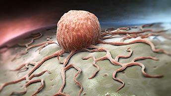 traitement du cancer