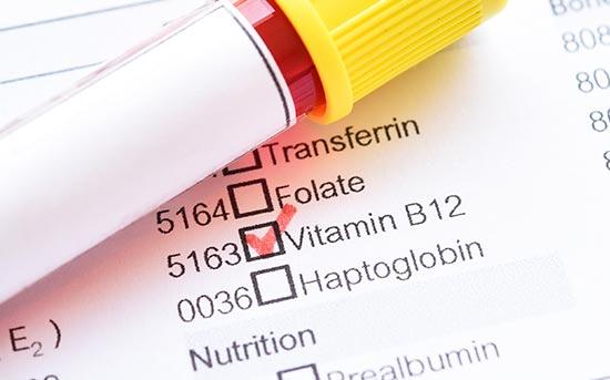비타민 B12 테스트