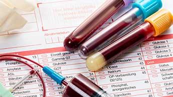 Höhere Vitamin D-Werte senken das Krebsrisiko