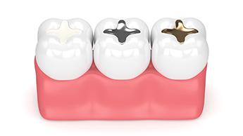 verschiedene Arten von Zahnfüllungen