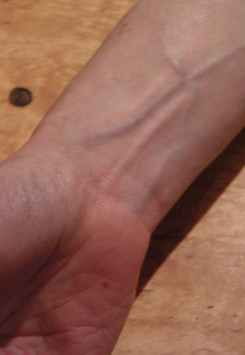 피부 화상: 6년 후