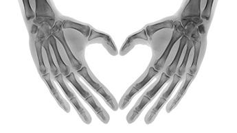 Vitamine K2 pour le cœur et les os