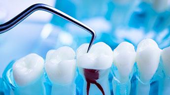 dente com tratamento de canal