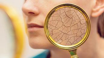 Trattamento per eczema