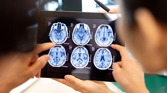 inflammation cerveau