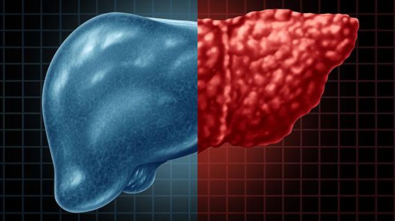детская неалкогольная жировая болезнь печени НАЖБП