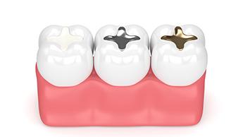異なる種類の歯の充填物