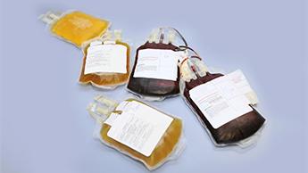 ridurre sangue plasma inverte l'invecchiamento