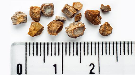 pedras nos rins
