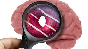 砂糖 脳 化学