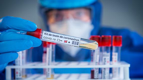 Kit de teste de coronavírus