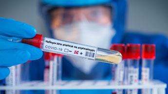 наборы для анализа на коронавирус заражены коронавирусом