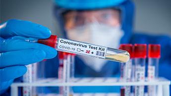 kits test coronavirus