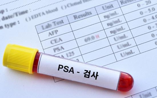 PSA 검사