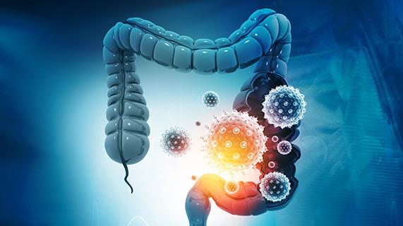 bactérie et croissance cellulaire anormale