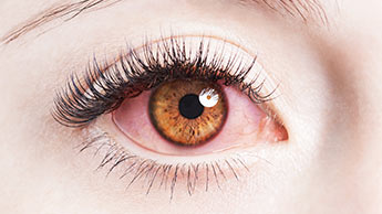 I tuoi occhi possono rivelare problemi di salute?