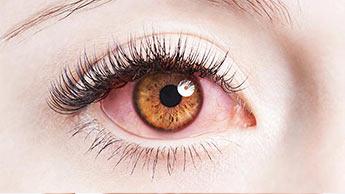 目から健康の異常がわかるでしょうか?