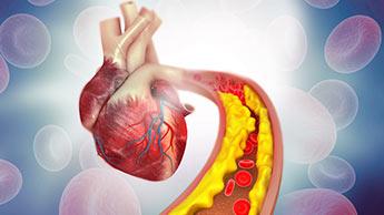 Uno studio sulle vittime di attacco di cuore ha mostrato che la maggior parte aveva livelli normali di LDL