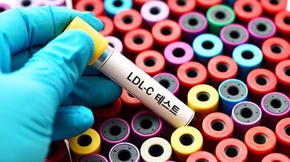 LDL-C 테스트