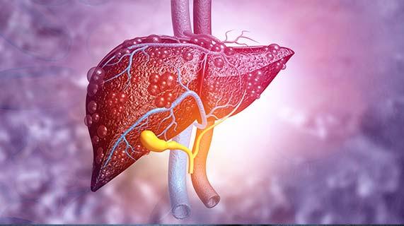 Esteatose hepática alcoólica