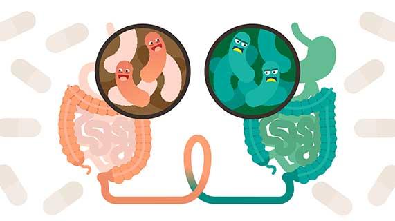 transplantation microbiote