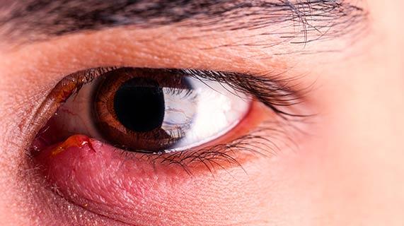 orgelet à l'œil infection