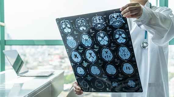 maladie alzheimer