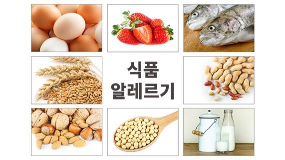 식품 알레르기