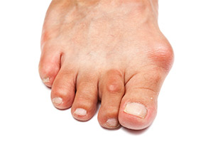 Bunion Causes Symptoms Treatment